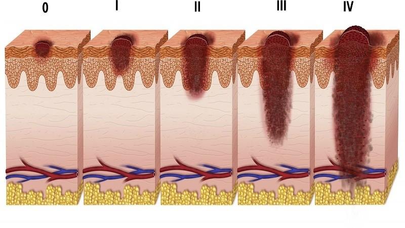 Меланома стопы: симптомы и лечение