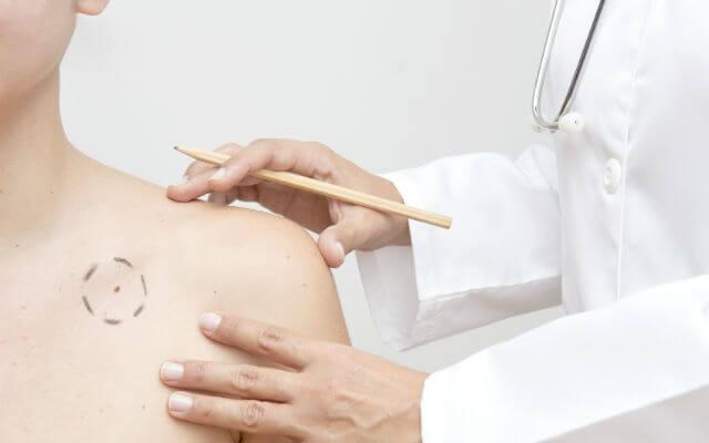 Пигментный невус: причины возникновения и лечение